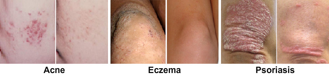 Skin conditions including eczema and psoriasis